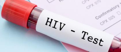 VIH test
